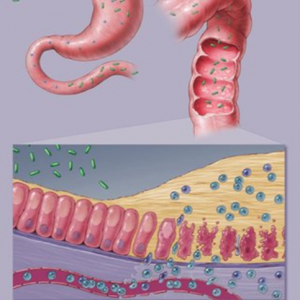 Bacterialviral Infections and Parasites 1